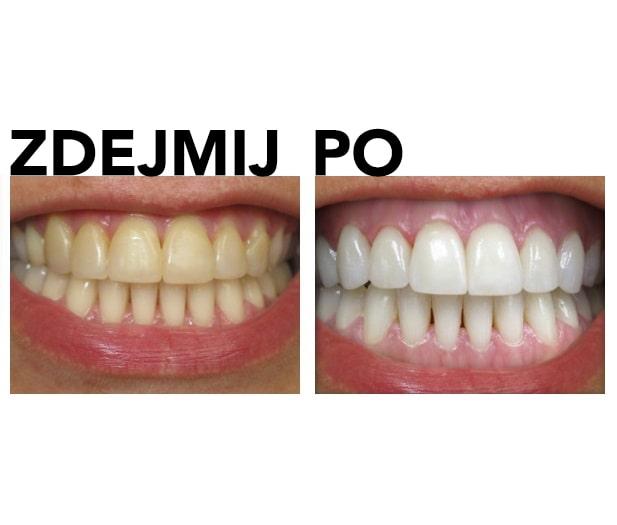 Zestaw do wybielania zębów przed i po zdjęciu przeglądu