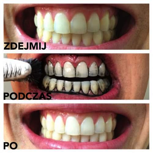 Wybiel zęby za pomocą węgla aktywowanego przed i po zabiegu