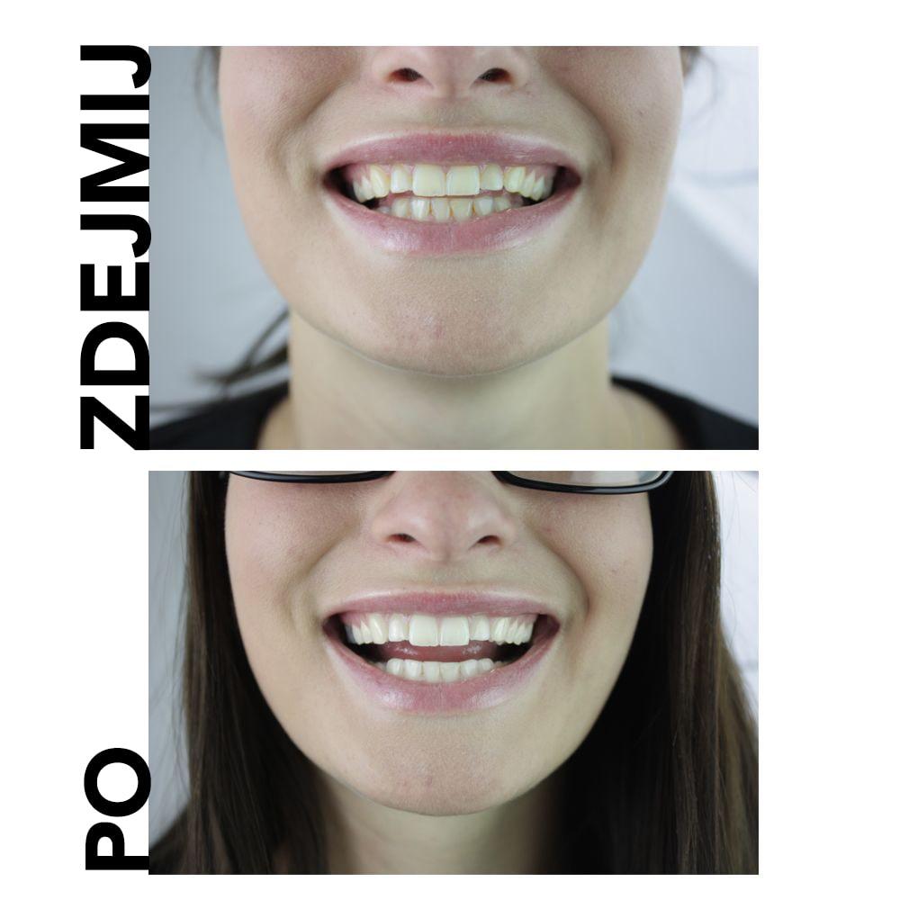 naturalna pasta do wybielania zębów przed i po zabiegu